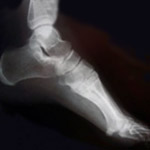 Podiatry Care in Orleans County